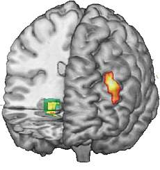 Image of Functional MRI data superimposed on 3-D MRI reconstruction of the brain.